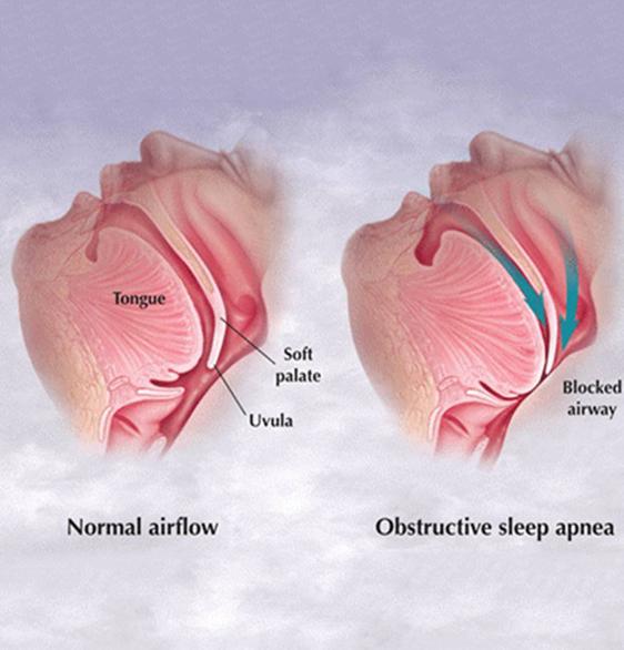Obstructive Sleep Apnea OSA and Dental Care Training – Dr. Payam Ataii
